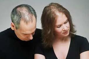 hair-loss-fall